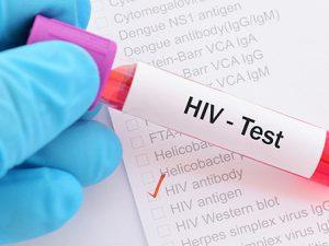 16 волнующих вопросов про ВИЧ, которые вы стеснялись задать