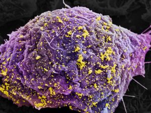 ВИЧ можно победить с помощью механизма репликации ДНК