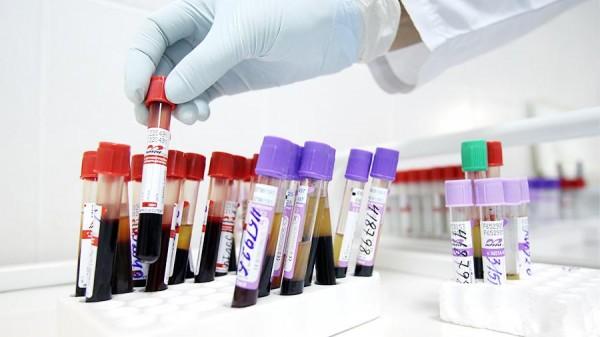 В новом году Минздрав на 20 % увеличил бюджет на лекарства для ВИЧ-больных
