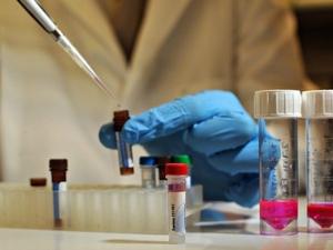 Ученые приблизились к созданию вакцины против ВИЧ