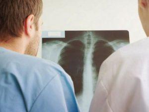Туберкулез костей и его симптомы