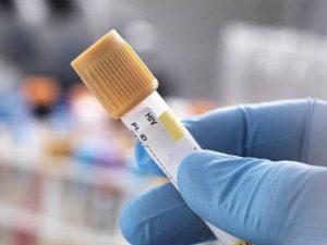 Пациенту заплатят $18,4 млн за непроведенный анализ на ВИЧ