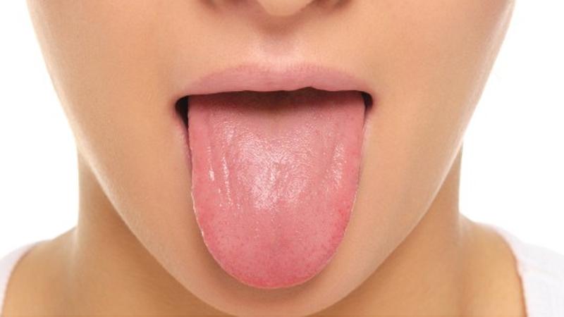Состояние здоровья человека видно по языку