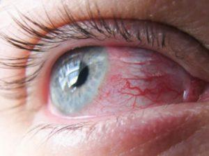 Глазная инфекция: что делать
