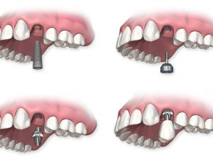 Имплантация и этапы восстановления