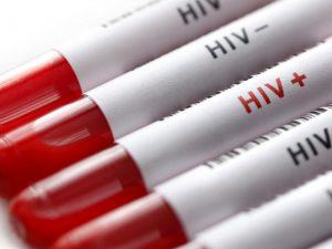 Социальный консерватизм — причина эпидемии ВИЧ в России