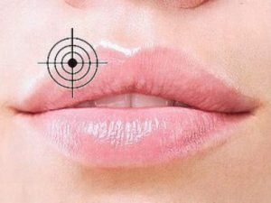 С герпесом на губах помогут справиться эти нехитрые способы