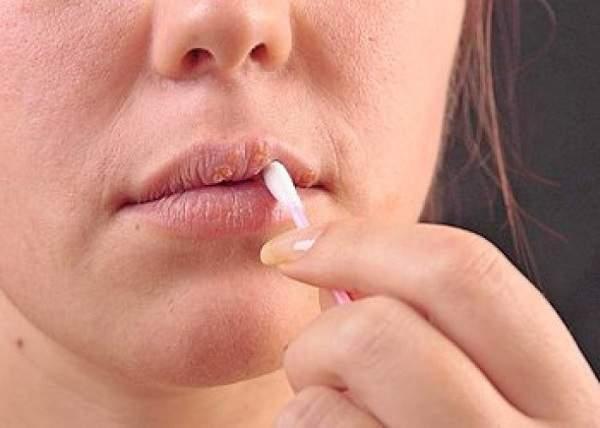 Названы народные средства лечения герпеса на губах