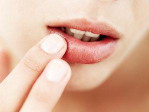 Простуда на губе возникает по причине генетической предрасположенности