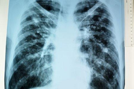 В клиниках начнут использовать диагностирующих туберкулёз крыс