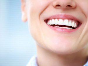 5 лучших методов отбеливания зубов