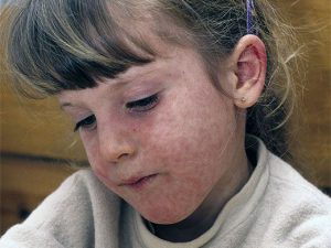Корь у детей: симптомы и лечение