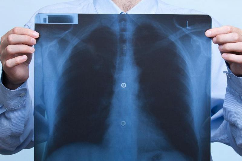 Пневмония — опасное заболевание. Важно знать первые признаки, чтобы не запустить патологию