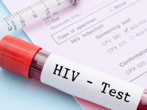 Все про ВИЧ инфекцию (СПИД)