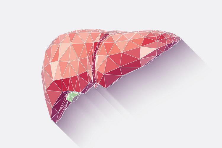 Цирроз печени: причины, симптомы, осложнения, лечение и профилактика