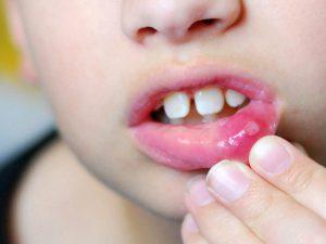 Герпетический (герпесный) — стоматит — признаки и способы лечения и профилактики