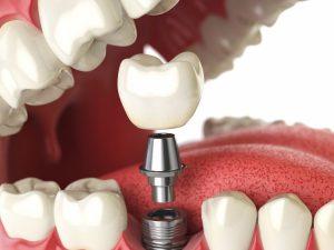 Имплантация зубов: общая информация
