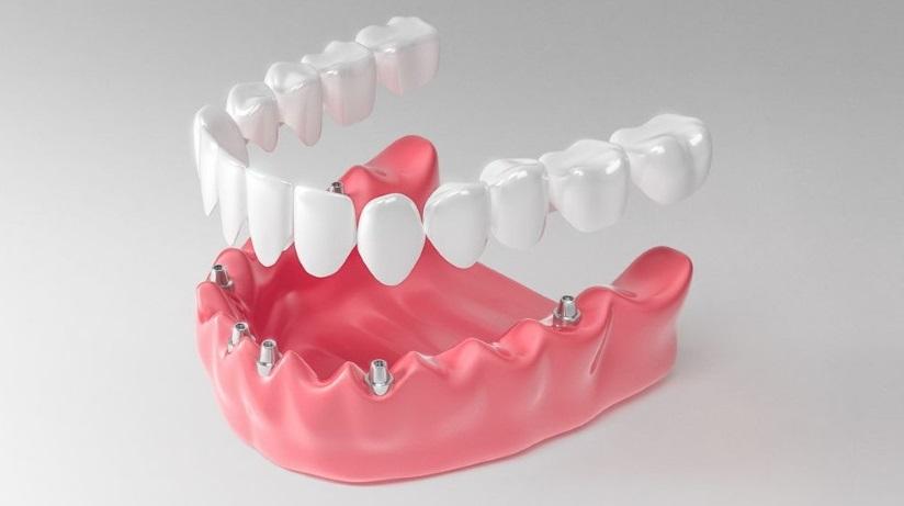 Съемное протезирование при имплантации нижней челюсти в случае полной адентии