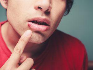 Ученые выяснили, как «включается» вирус герпеса