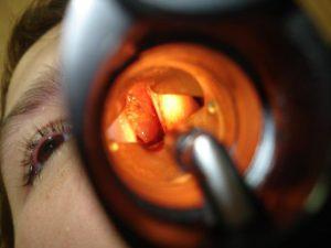 Гипертрофический ринит: симптомы, лечение, операция