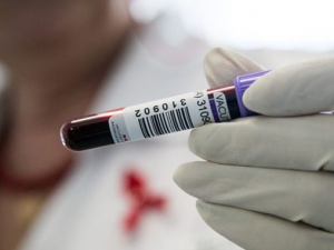 Ученые смогли уменьшить риск передачи ВИЧ через секс