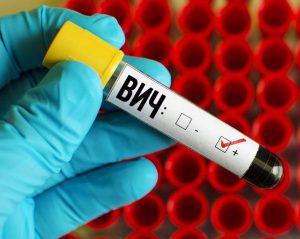 ВИЧ-инфекция: симптомы и причины заболевания