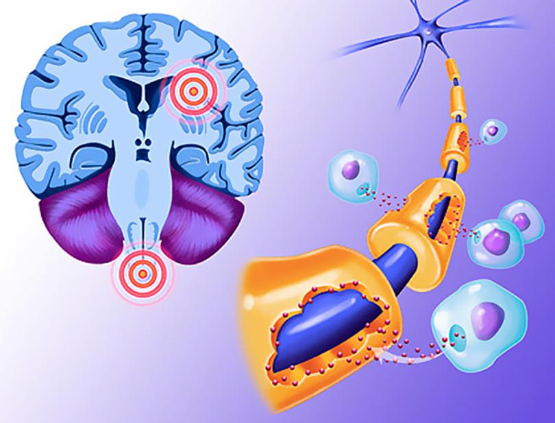 Возникновение рассеянного склероза у молодых людей, причины и лечение
