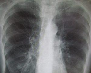 Ученые объяснили, почему у некурящих возникает ХОБЛ