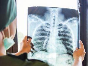 Пульмонолог рассказал, сколько легкие восстанавливаются после коронавируса