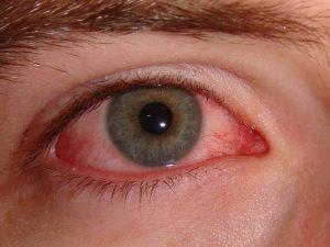 «Розовый глаз» — возможный основной симптом коронавируса COVID-19