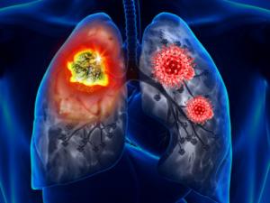 Врачи рассказали, как отличить коронавирусную инфекцию от рака легких