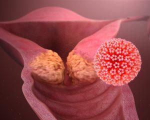 ВПЧ-18 связали с более агрессивным раком