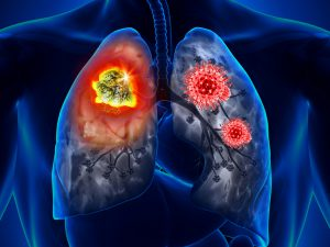 Пульмонолог предупредила об опасных способах восстановления после коронавируса