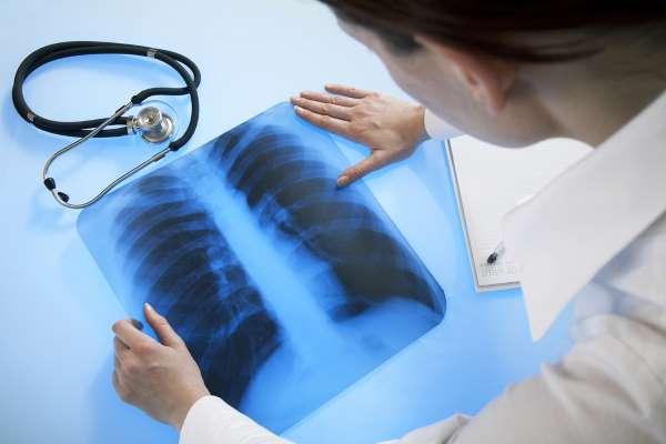 Пульмонолог перечислил первые признаки поражения легких