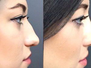Ринопластика носа — основные аспекты операции