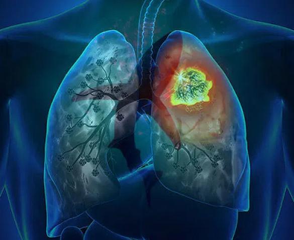 Фиброз легких: как вовремя обнаружить осложнение от коронавируса