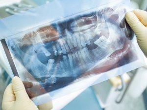 Врач высказался о выпадении зубов из-за COVID-19