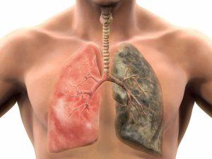Чистка легких: как поддерживать здоровье главного фильтра