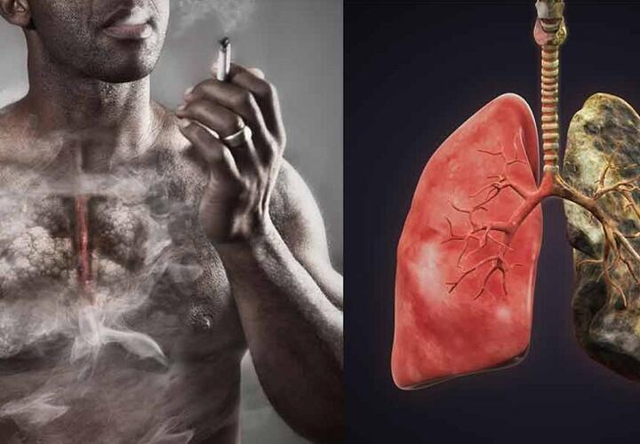 Восстанавливаются ли легкие у бывших курильщиков?