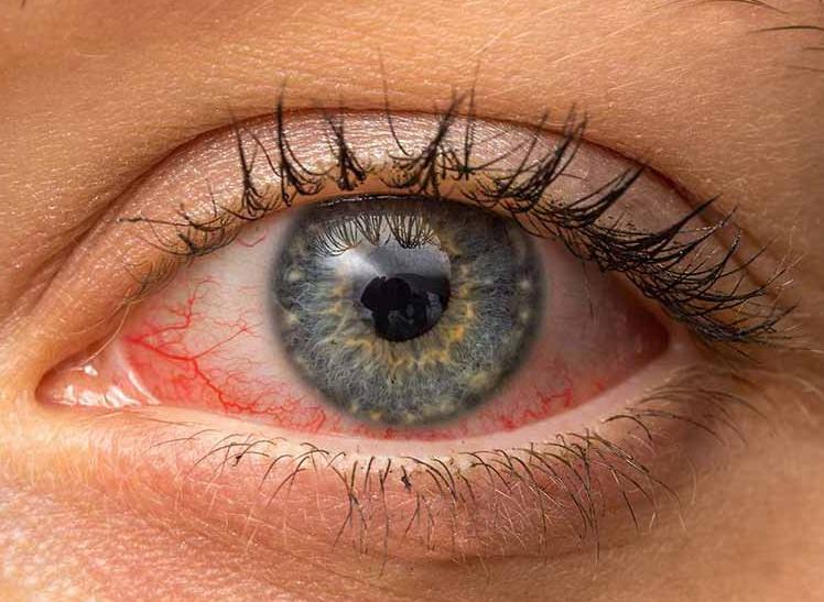 Офтальмолог Ольга Булгакова рассказала, как коронавирус может влиять на зрение