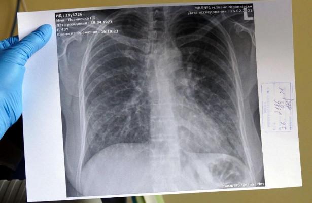 Врач рассказал о «молчащих пневмониях» при COVID-19