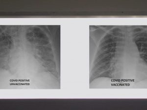 Рентген показал, как вакцины защищают лёгкие
