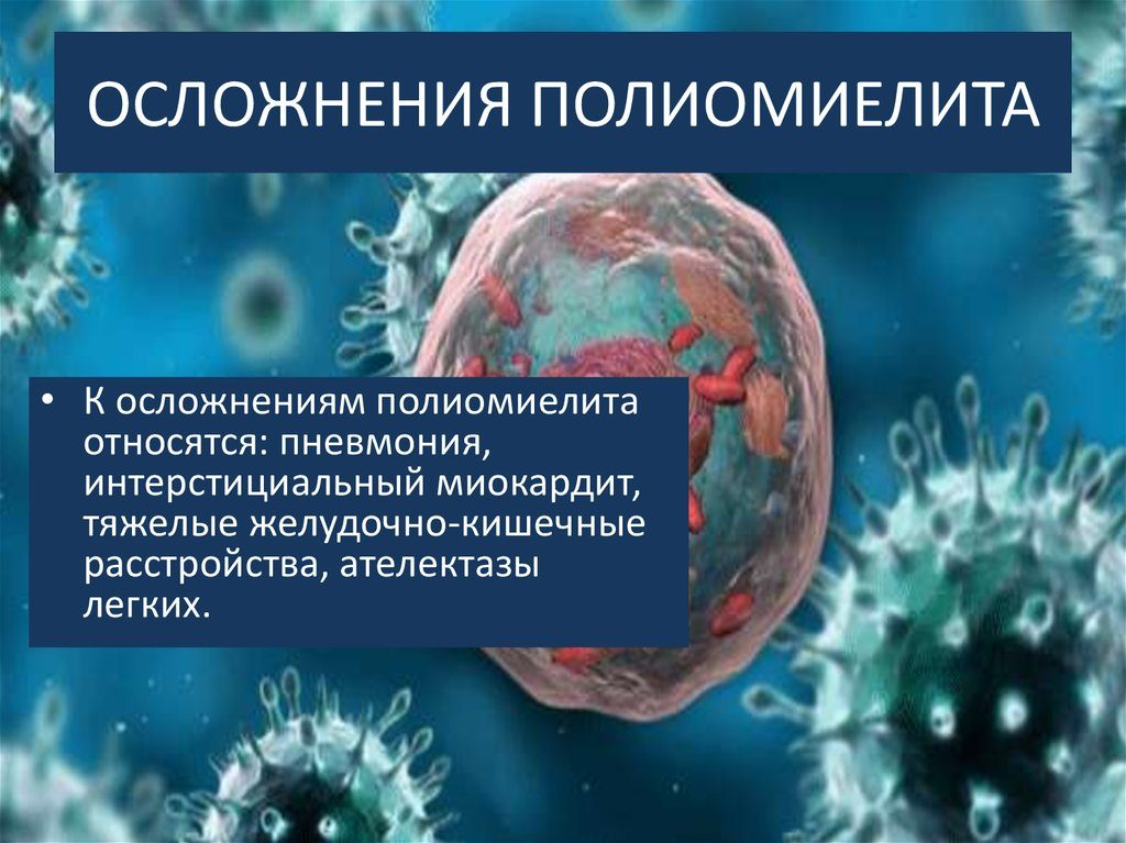Паралич и другие осложнения при полиомиелите